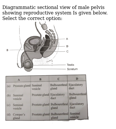 """Diagrammatic sectional view of male pelvis showing reproductive system Is given below. Select the correct option: <br> <img src=""""https://d10lpgp6xz60nq.cloudfront.net/physics_images/GRB_OBJ_BIO_IIND_C47_E01_425_Q01.png"""" width=""""80%"""">"""
