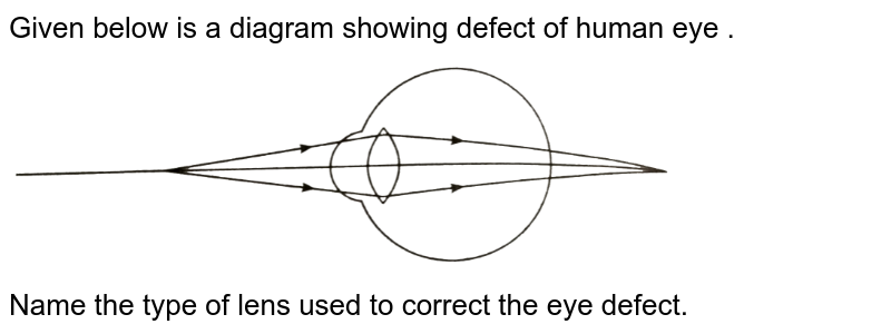 """Given below is a diagram showing defect of human eye . <br> <img src=""""https://d10lpgp6xz60nq.cloudfront.net/physics_images/NVT_SCI_TECH_DIG_X_P1_C07_E10_089_Q01.png"""" width=""""80%""""> <br>  Name the type of lens used to correct the eye defect."""