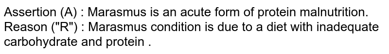 """Assertion (A) : Marasmus is an acute form of protein malnutrition. <br> Reason (""""R"""") : Marasmus condition is due to a diet with inadequate carbohydrate and protein ."""
