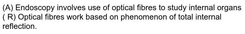 (A) Endoscopy involves use of optical fibres to study internal organs <br> ( R) Optical fibres work based on phenomenon of total internal reflection.