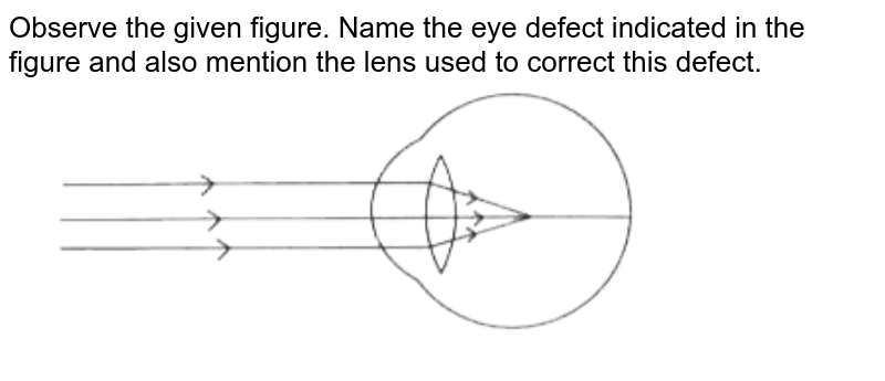 """Observe the given figure. Name the eye defect indicated in the figure and also mention the lens used to correct this defect. <br> <img src=""""https://doubtnut-static.s.llnwi.net/static/physics_images/OSW_QB_SCI_X_SP_APR_19_E01_016_Q01.png"""" width=""""80%"""">"""