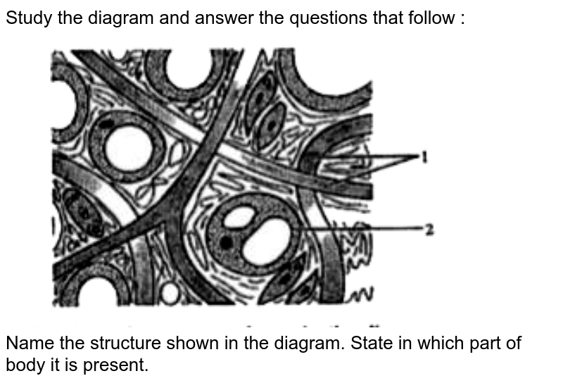 """Study the diagram and answer the questions that follow : <br> <img src=""""https://doubtnut-static.s.llnwi.net/static/physics_images/OSW_ICSE_QB_BIO_IX_C12_E01_025_Q01.png"""" width=""""80%""""> <br>  Name the structure shown in the diagram. State in which part of body it is present."""