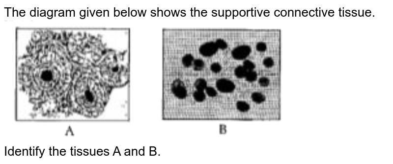 """The diagram given below shows the supportive connective tissue.  <br> <img src=""""https://doubtnut-static.s.llnwi.net/static/physics_images/OSW_ICSE_QB_BIO_IX_EP_20_E01_077_Q01.png"""" width=""""80%""""> <br>  Identify the tissues A and B."""