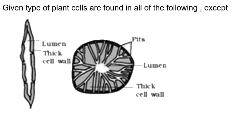 """Given type of plant cells are found in all of the following , except  <br> <img src=""""https://d10lpgp6xz60nq.cloudfront.net/physics_images/NTA_NEET_SET_69_E03_042_Q01.png"""" width=""""80%"""">"""
