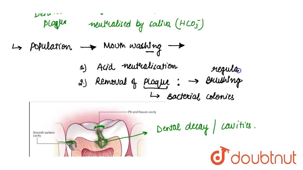 Solution for Dental Caries